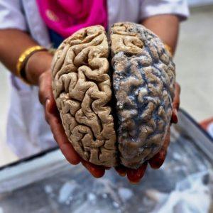 Handful Of Brains